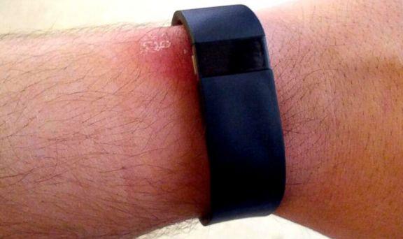 braslety-fitbit-force-vyzyvayut-allergiyu-